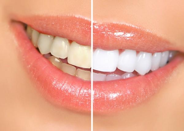 sbiancamento-denti