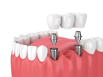 3d-render-jaw-implants-dental-260nw-1050054875-2.jpg